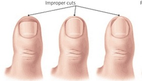 Prevent and Treat Ingrown Toenails