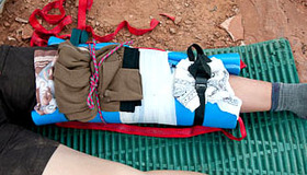 Make a Sleeping Pad Splint