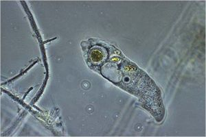 Microscopic Life In Single Drop Of Pond Water